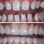 Restorative Dentistry Decatur Georgia in DeKalb County